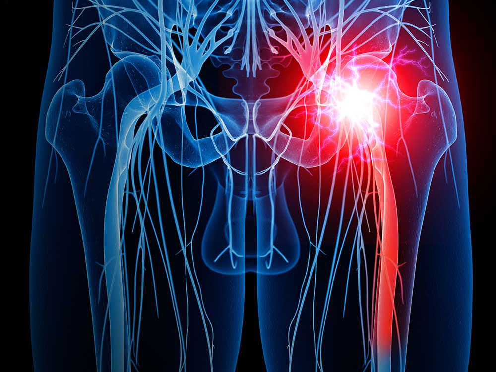 Sciatic Nerve, Sciatica, Low Back Pain